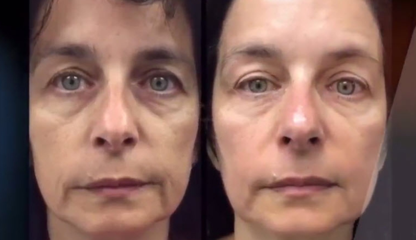 Eminence Organics customer before and after photo