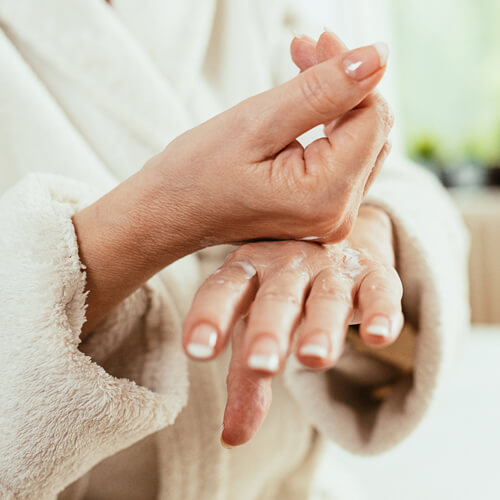 Woman with dry hands