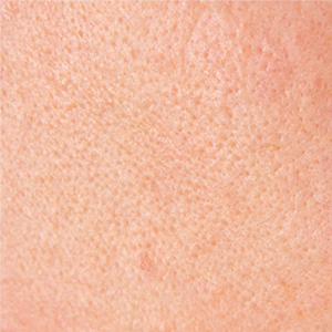 The Eminence Organics Guide On How To Unclog Your Pores | Eminence