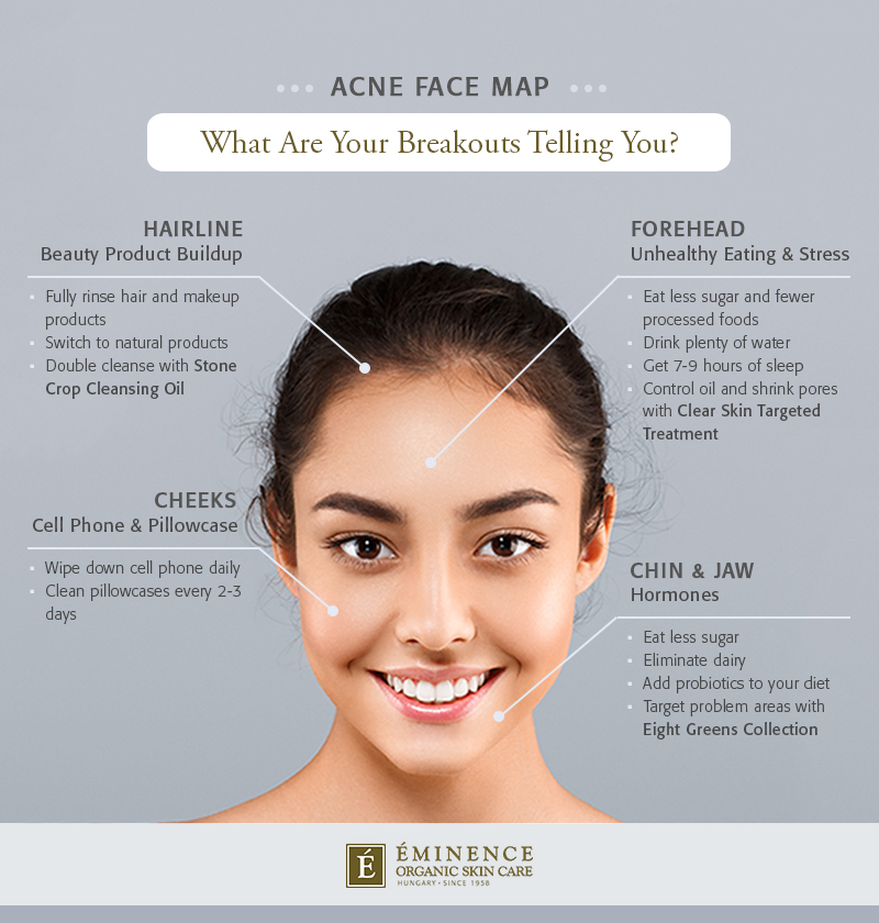 Eminence Organics acne face map infographic: What are your breakouts telling you?