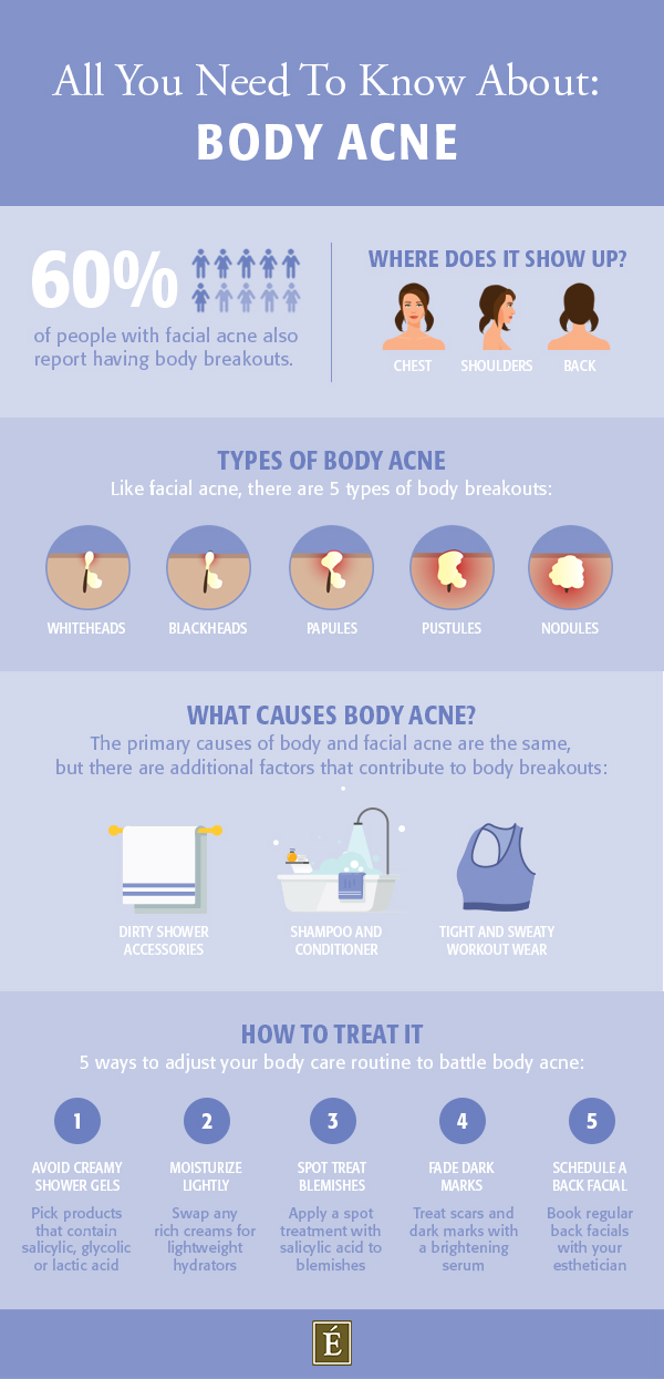 all you need to know about body acne infographic