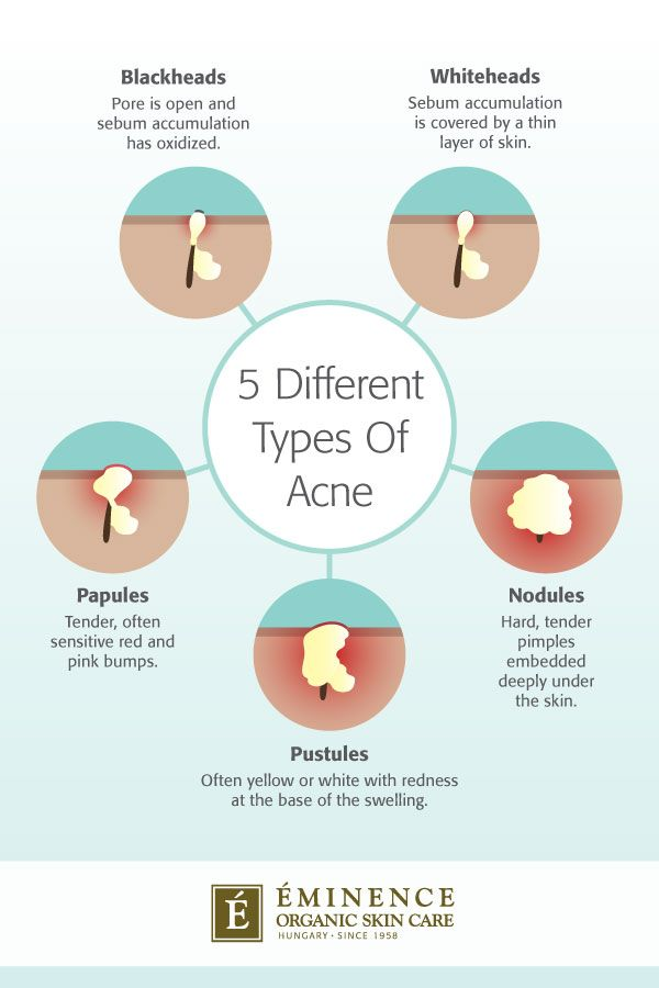 Eminence Organics infographic illustrating the differences between 5 types of acne