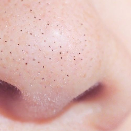 Closeup of blackheads on the nose