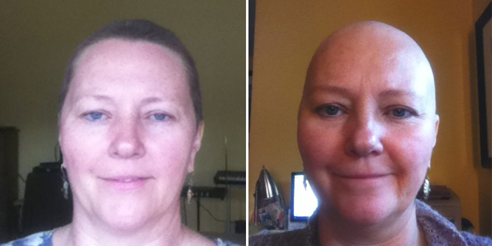 Chrystel Mann before and after cancer treatment