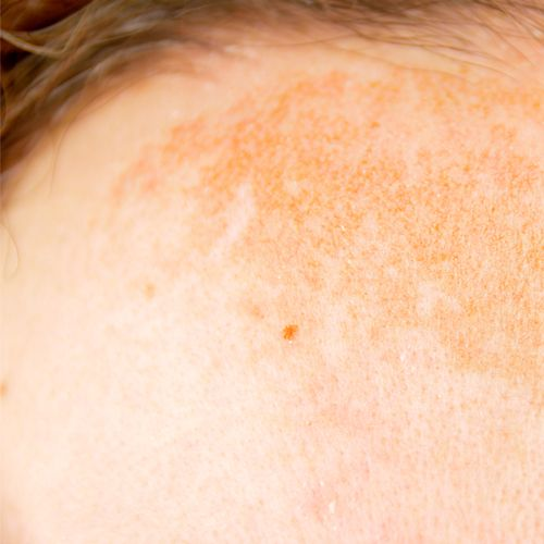Closeup on hyperpigmentation or dark spots on forehead