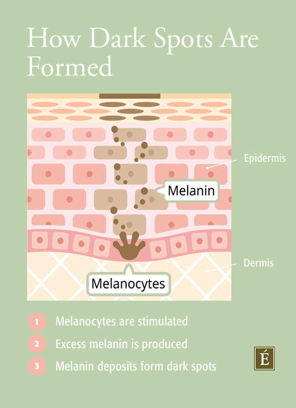 Infographic on how dark spots are formed
