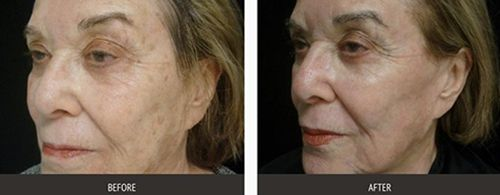 before and after  hyperpigmentation laser treatment