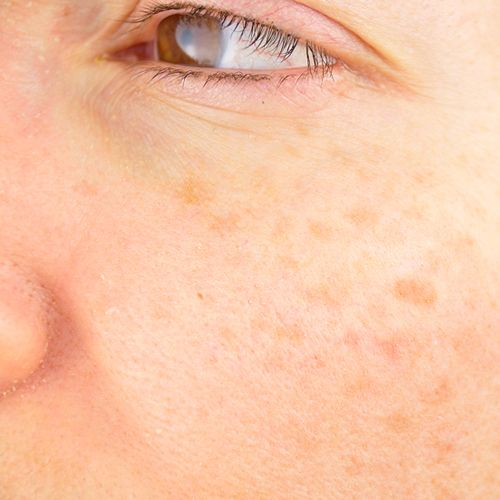 closeup of woman with hyperpigmentation