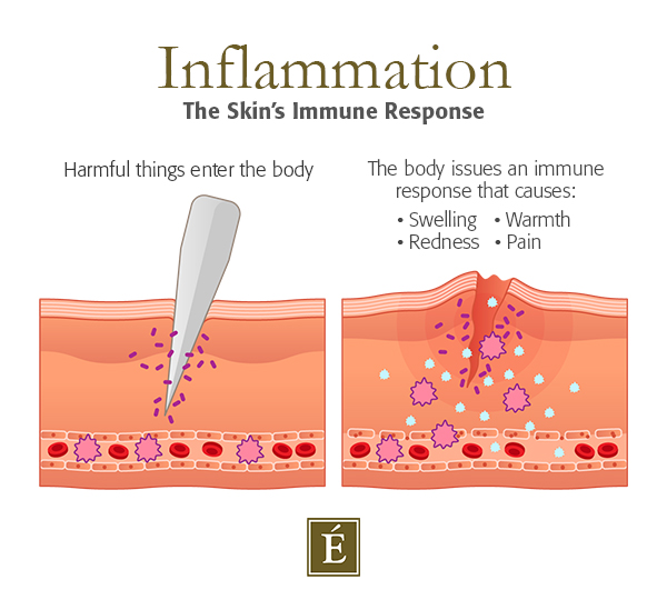 skin inflammation cross section