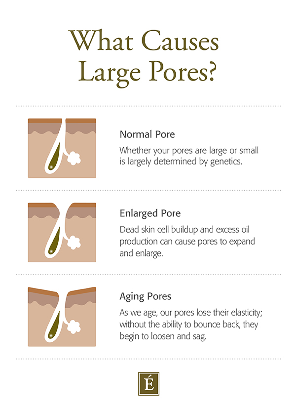 What Causes Large Pores Infographic