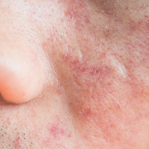 Closeup of red, sensitive skin