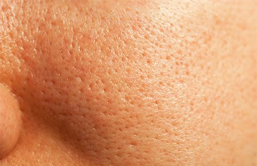 skin with large pores