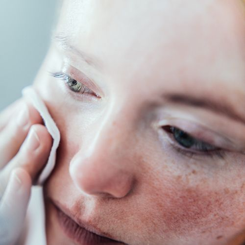 Closeup of woman with sensitive skin cleansing face