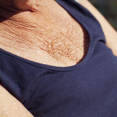 old woman with chest wrinkles