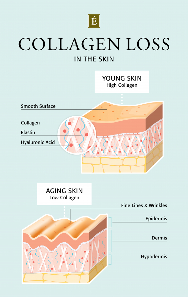 Collagen loss in the skin infographic