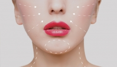 Woman's face with plastic surgery lines